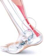 tendinite au tendon d'Achille